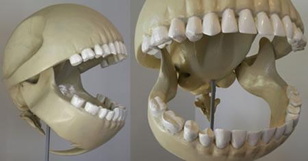 Скелет Пакмана