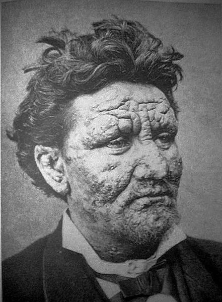 Leprosy, прокаженный